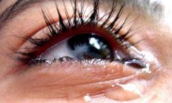 Плачет правый глаз. К чему слезится правый глаз примета
